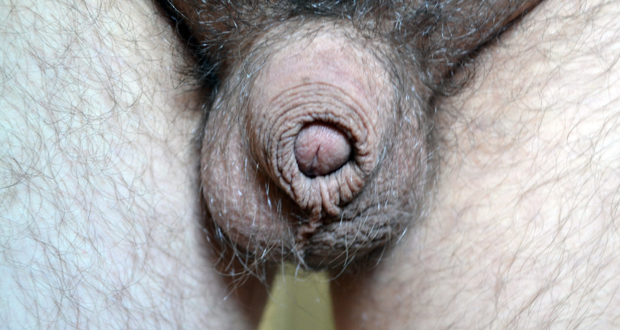 Acorn micropenis
