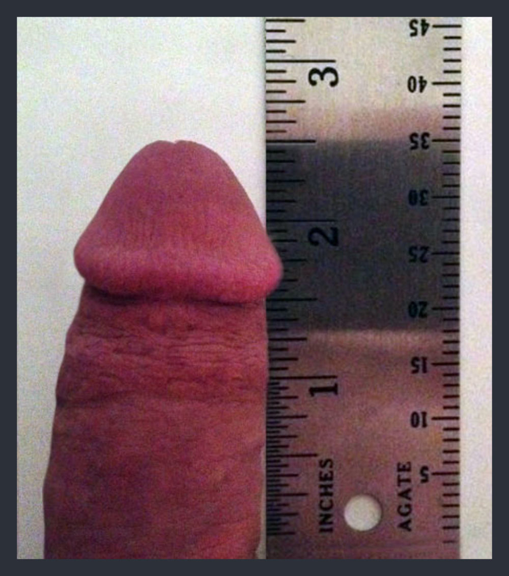 Image of a small penis.
