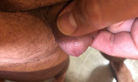 Beyond micropenis size.