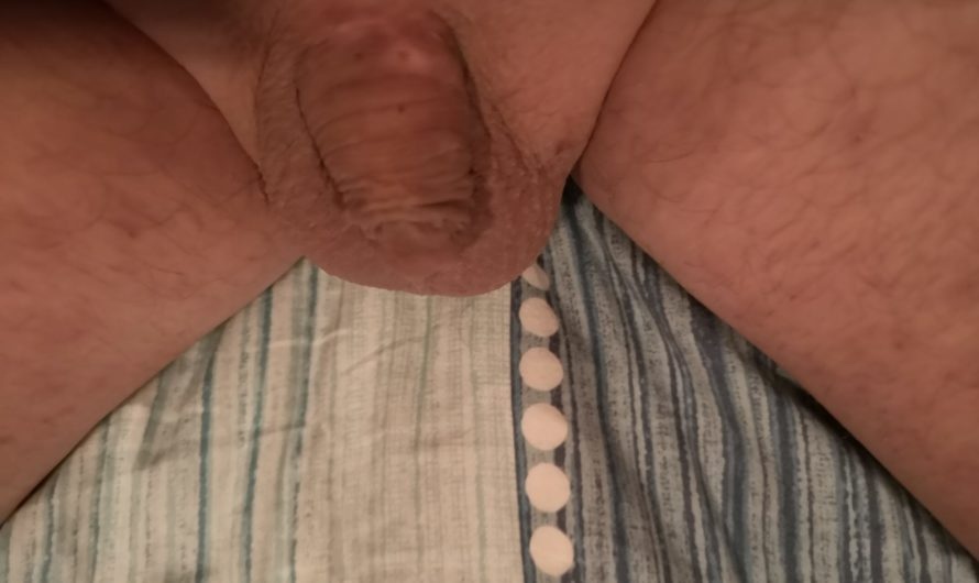 34 year old dumped due to his micro penis