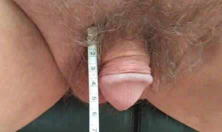 Micropenis Measured