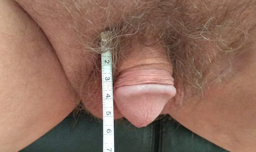2 inch micropenis measured out for proof