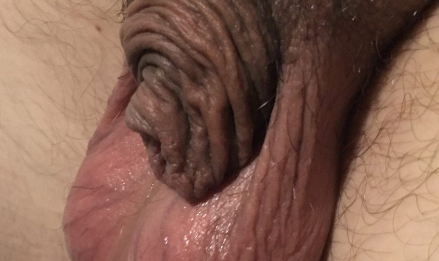 Micropenis after shower looking bizarre
