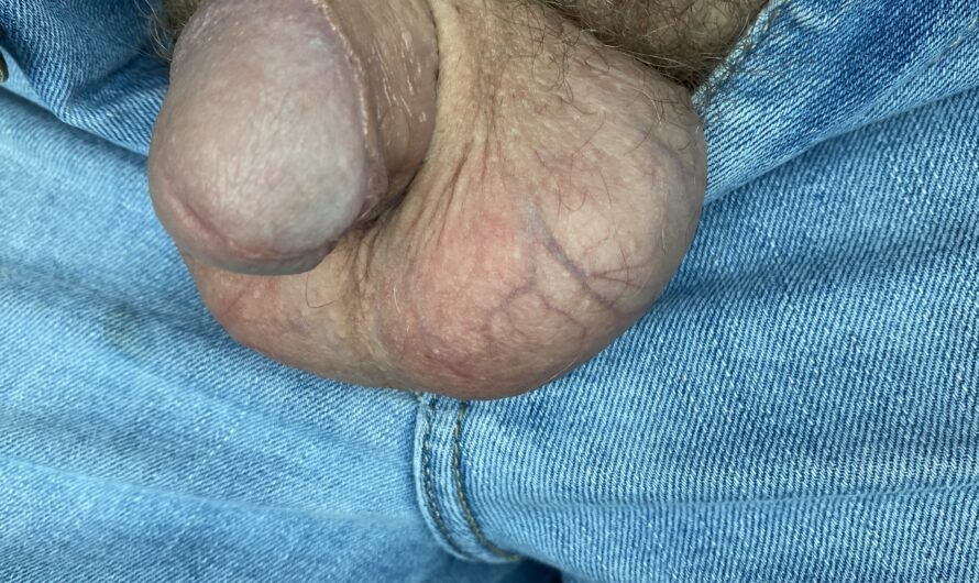 My Inferior White Beta Dick