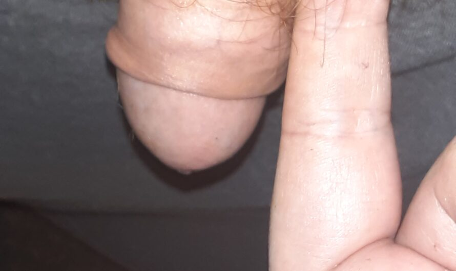 My penis is smaller than a finger and wish I was a girl