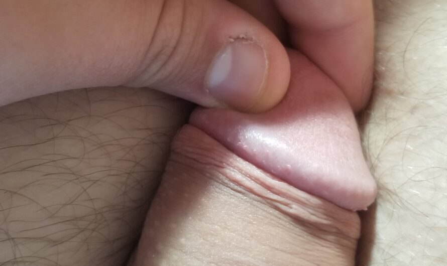 35 and have the smallest penis in the world