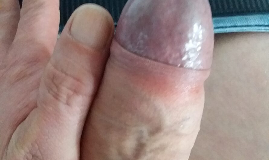 A little bigger than my thumb